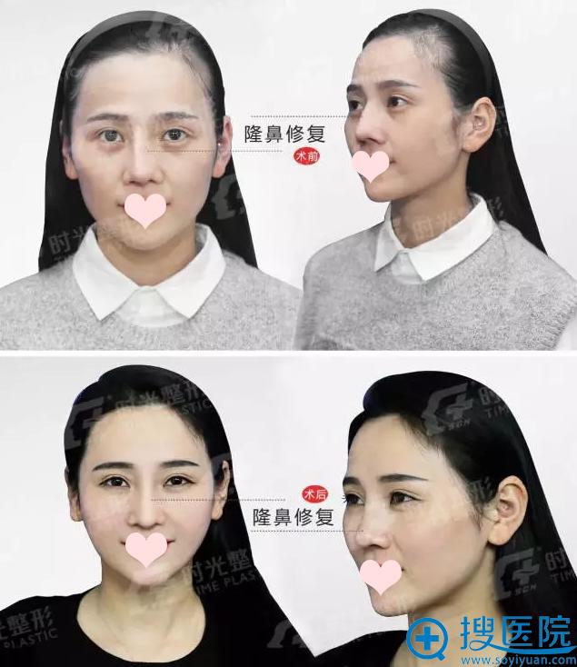隆鼻修复术前(硅胶)- 隆鼻修复术后(膨体)