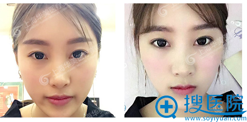 在上海华美打完瘦脸针10天效果