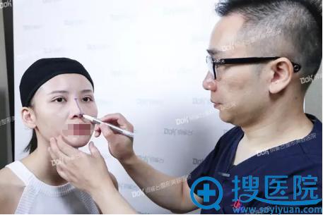 重庆铜雀台田鹏飞线雕隆鼻术画线
