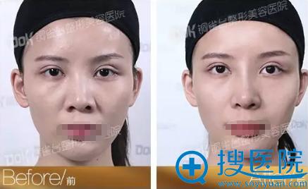 重庆铜雀台线雕隆鼻术后正面对比照