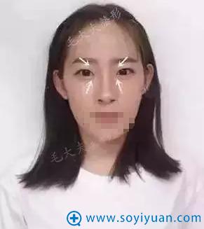 洛阳毛大夫双眼皮+开眼角术前照