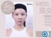 【视频案例】重庆铜雀台田鹏飞线雕隆鼻前后对比 暑期价2999元