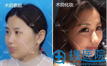 苏州美莱线雕隆鼻术前素颜、化妆照对比