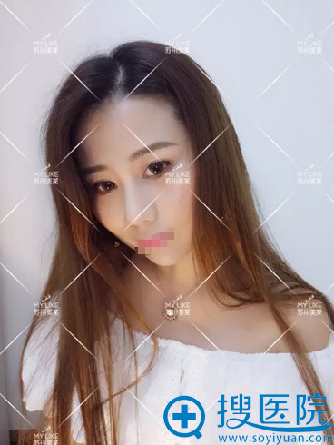 苏州美丽线雕隆鼻术后照片