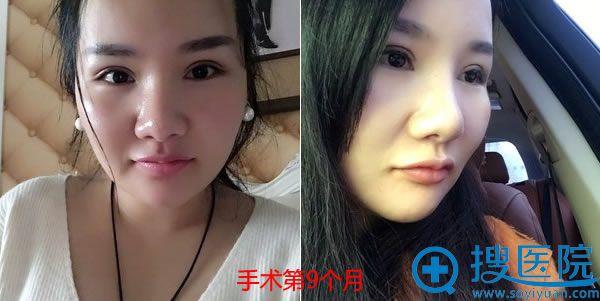 下颌角切除手术9个月恢复照片