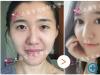 上海修复医院哪家 百达丽(伯思立)双眼皮修复案例告诉你