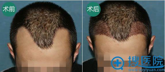广州倍生医疗毛发种植案例图