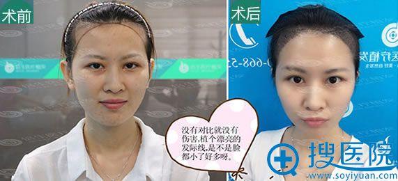 广州倍生头发种植前后对比效果