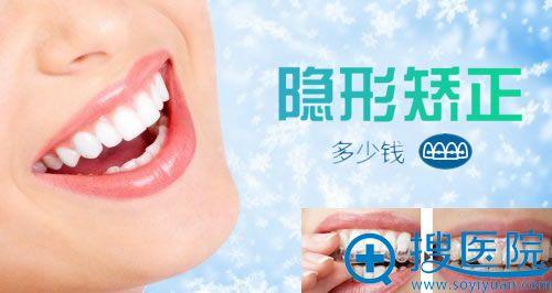 北京隐形矫正牙齿多少钱