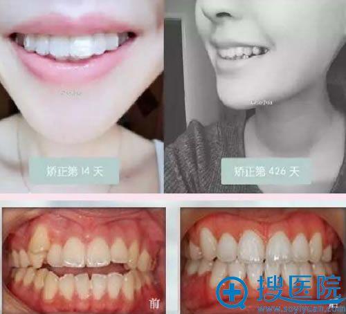 北京金圣口腔医院隐形矫正牙齿案例