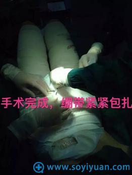 福州名韩水动力吸脂术后包扎绷带
