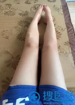 福州名韩陈声瑾水动力吸脂术后14天恢复效果
