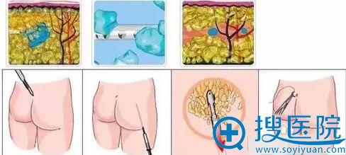 吸脂手术原理图