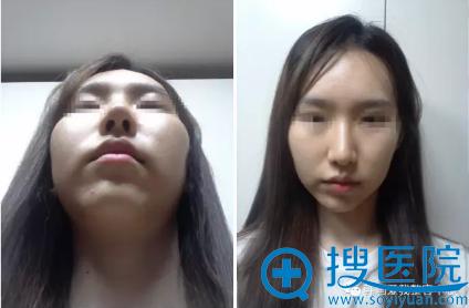 韩国iwell爱我整形医院颧骨整形术前照片