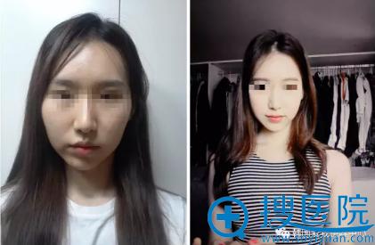 韩国iwell爱我颧骨整形术后2个月对比照片