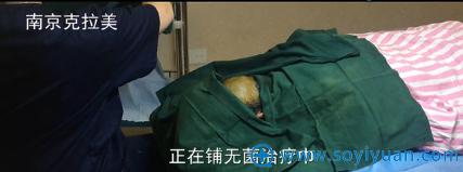 南京克拉美王莉发际线种植—隔离施术部位