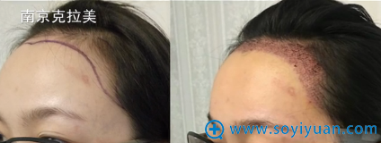 南京克拉美王莉发际线种植术后即刻对比图片