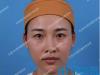 【亲身经历】看我找天津464医院刘旺做的双眼皮修复效果怎么样