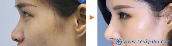 线雕隆鼻术后注意事项