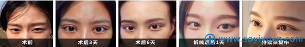 扬州华美高军飞双眼皮案例术后恢复过程