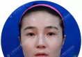 国内磨骨哪个医生好?上海华美李志海做的下颌角真实案例告诉你