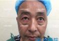 上海哪家医院祛眼袋好 上海时光不开刀祛眼袋术后7天恢复期视频