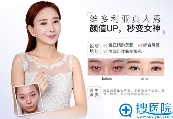 维氏睛龄美眼术真实案例