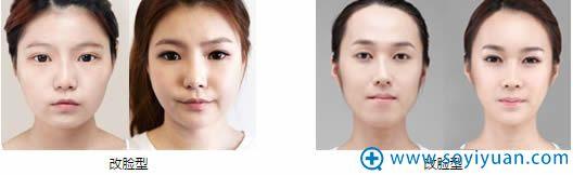 蚌埠美莱坞改脸型对比图