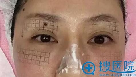 深圳联合丽格眼部热玛吉治疗后即刻效果