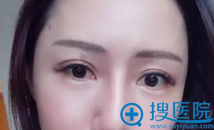 深圳联合丽格眼部热玛吉解决眼部松弛问题