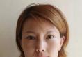 青岛诺德自体脂肪填充面部案例术后效果对比照 黄脸婆秒变少女