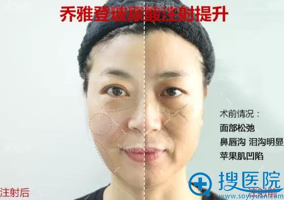 术中已经注射半边脸的效果对比