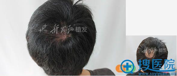 广州新发现疤痕处种植头发案例图