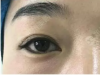 郑州美眼整形医院田国静双眼皮失败修复成功案例效果图分享