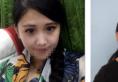 哈尔滨索菲陈富全做鼻子怎么样 耳软骨鼻综合案例真实图片分享