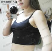 有图有真相:韩国高兰得外科医院手臂和腰腹吸脂恢复过程