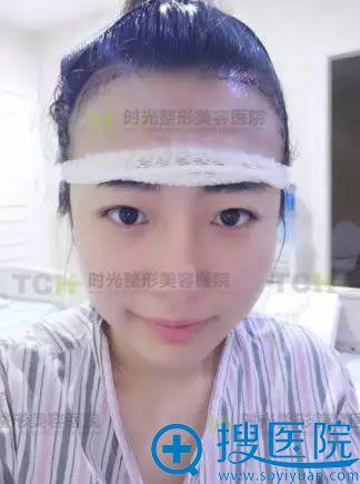 植发术后天的照片