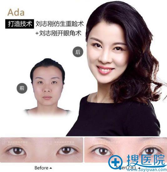 大连刘志刚做眼睛整形代表案例