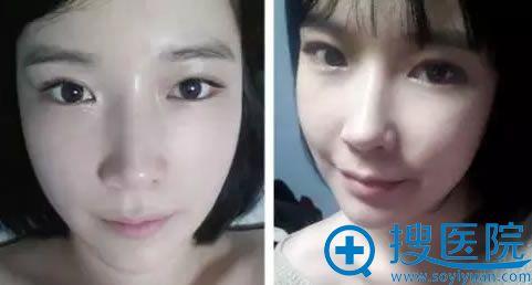 眼鼻综合整形术后一个月恢复效果
