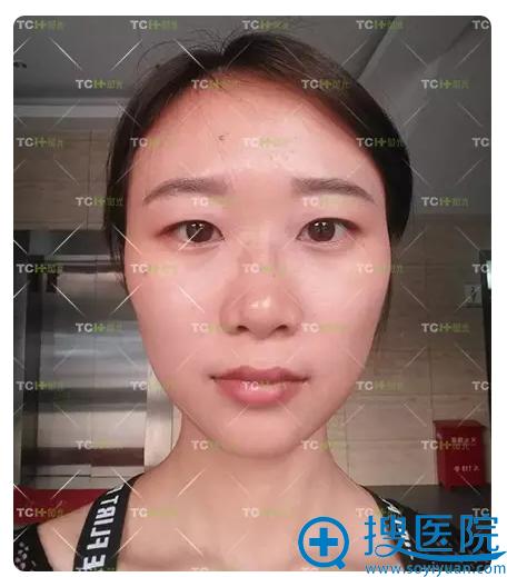 双眼皮隆鼻术前照片