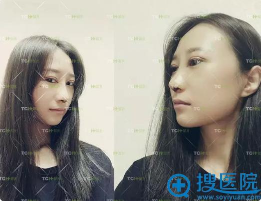 在杭州时光做完眼鼻综合第五天生活照