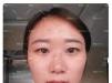 我是小婷,上周找杭州时光整形医院吴艾竞院长做了双眼皮和隆鼻