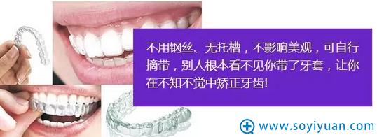 深圳非凡整形美容医院隐形矫正优势