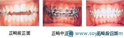 深圳非凡牙齿自锁托槽矫正案例