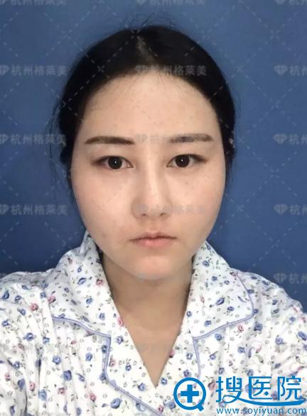 双眼皮术前照
