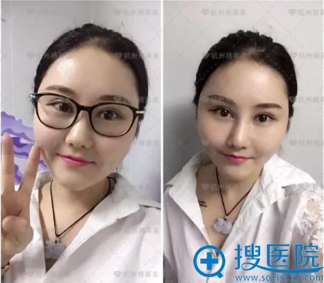 在杭州格莱美做完全切双眼皮10天了