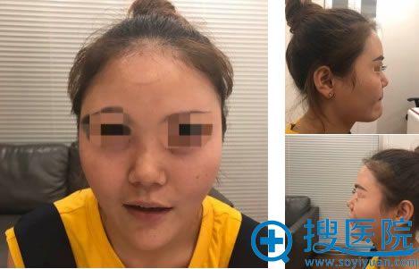 北京世熙做鼻综合前的照片