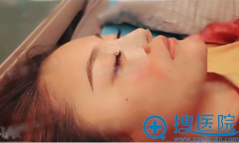 鼻综合整形手术即刻效果图片