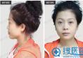 看我找沈阳杏林朱石江做膨体+耳软骨综合隆鼻子案例效果好吗