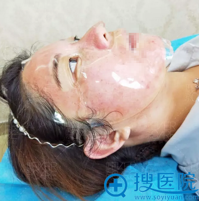 美颜微针控油祛痘治疗结束敷面膜修护